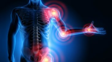 Musculoskeletal System and Oxidative Stress EL Paso Tx